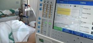 Equipo de Hemodiálisis. Foto: Cubainformación.tv